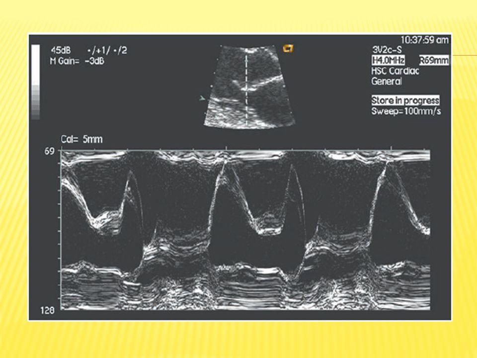 Utiliza el pequeño cambio de giro en la onda US reflejada para calcular la velocidad de algo en movimiento, en este caso, la sangre: Doppler continuo Doppler en pulso Doppler color