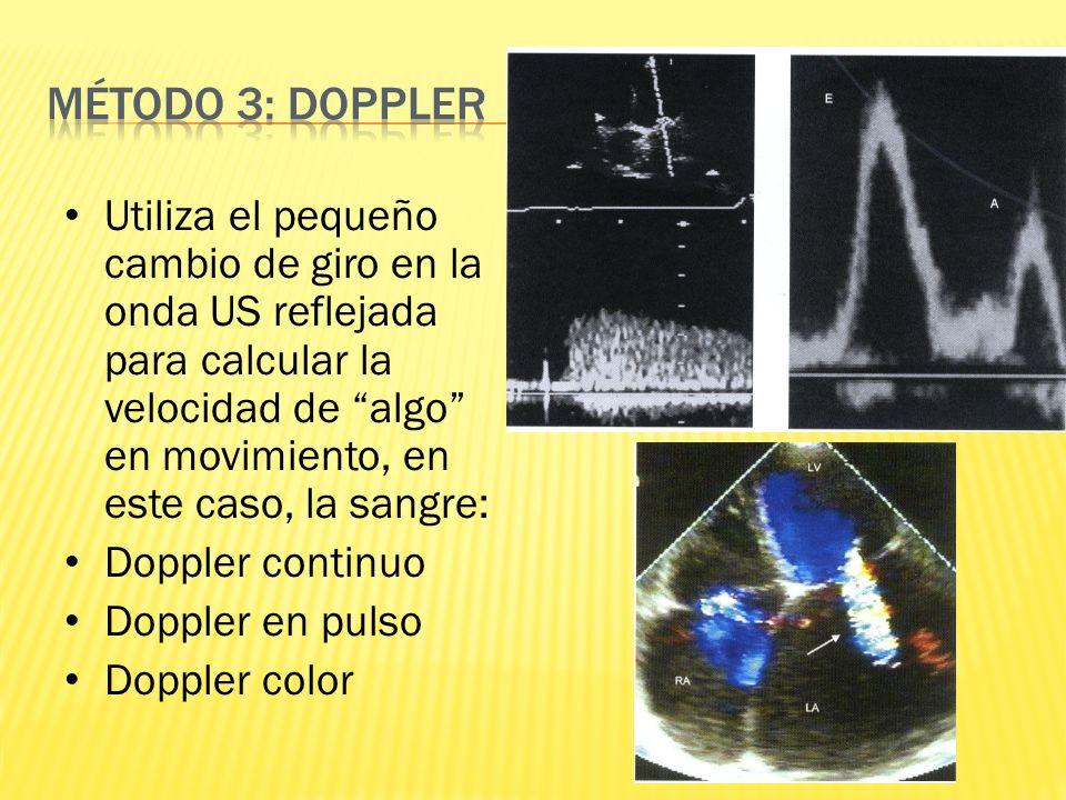 Utiliza el pequeño cambio de giro en la onda US reflejada para calcular la velocidad de algo en movimiento, en este caso, la sangre: Doppler continuo