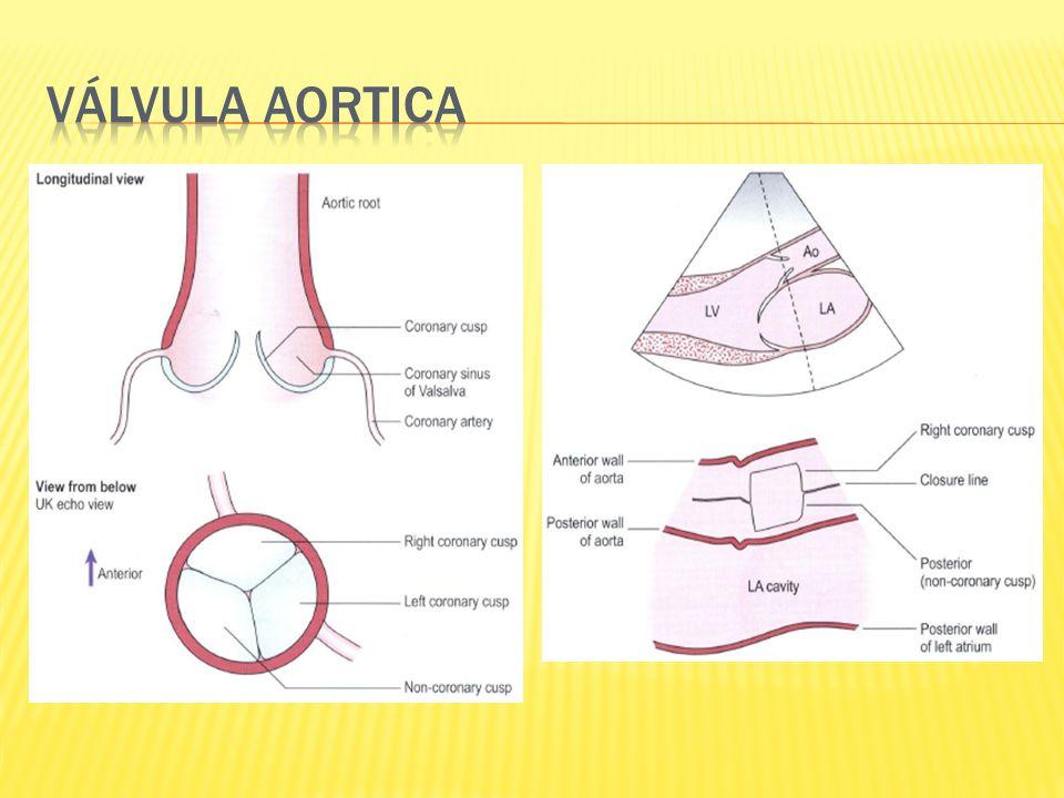 Valvular: reumática, degenerativa, congénita Subvalvular: membrana subaortica Supravalvular : sindrome Williams