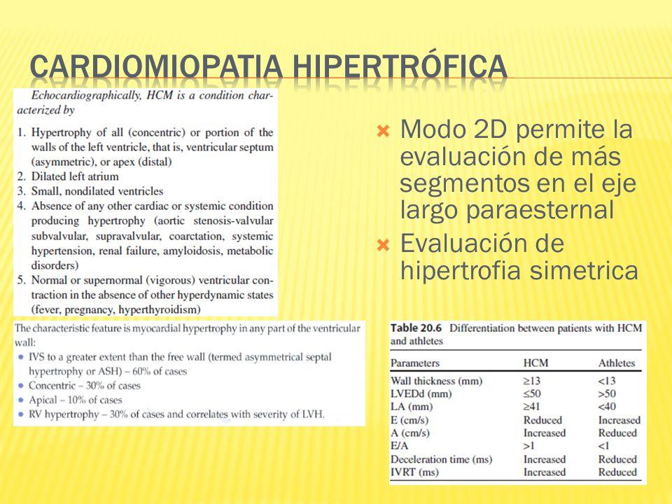 Modo 2D permite la evaluación de más segmentos en el eje largo paraesternal Evaluación de hipertrofia simetrica