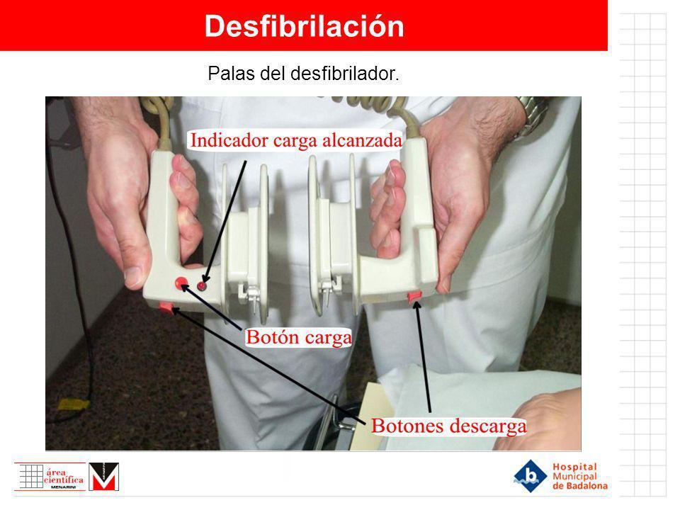 Desfibrilación Palas del desfibrilador.