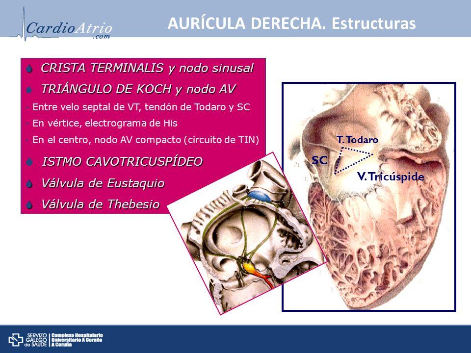 AURÍCULA DERECHA. Estructuras T. Todaro V. Tricúspide SC CRISTA TERMINALIS y nodo sinusal CRISTA TERMINALIS y nodo sinusal TRIÁNGULO DE KOCH y nodo AV