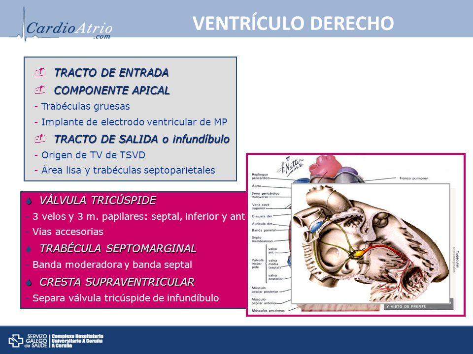 VENTRÍCULO DERECHO TRACTO DE ENTRADA COMPONENTE APICAL - Trabéculas gruesas - Implante de electrodo ventricular de MP TRACTO DE SALIDA o infundíbulo -