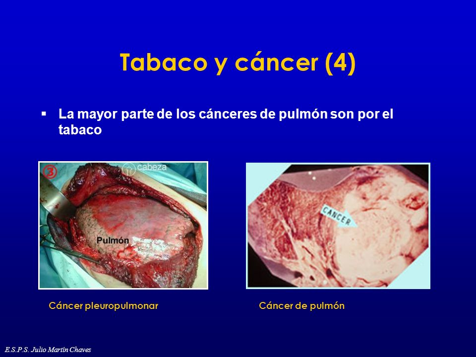 Tabaco y cáncer (4) La mayor parte de los cánceres de pulmón son por el tabaco Cáncer pleuropulmonarCáncer de pulmón E.S.P.S. Julio Martín Chaves
