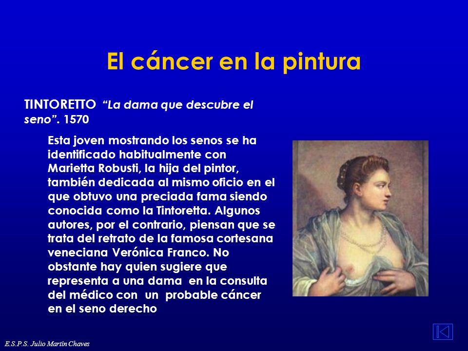 El cáncer en la pintura TINTORETTO La dama que descubre el seno. 1570 Esta joven mostrando los senos se ha identificado habitualmente con Marietta Rob