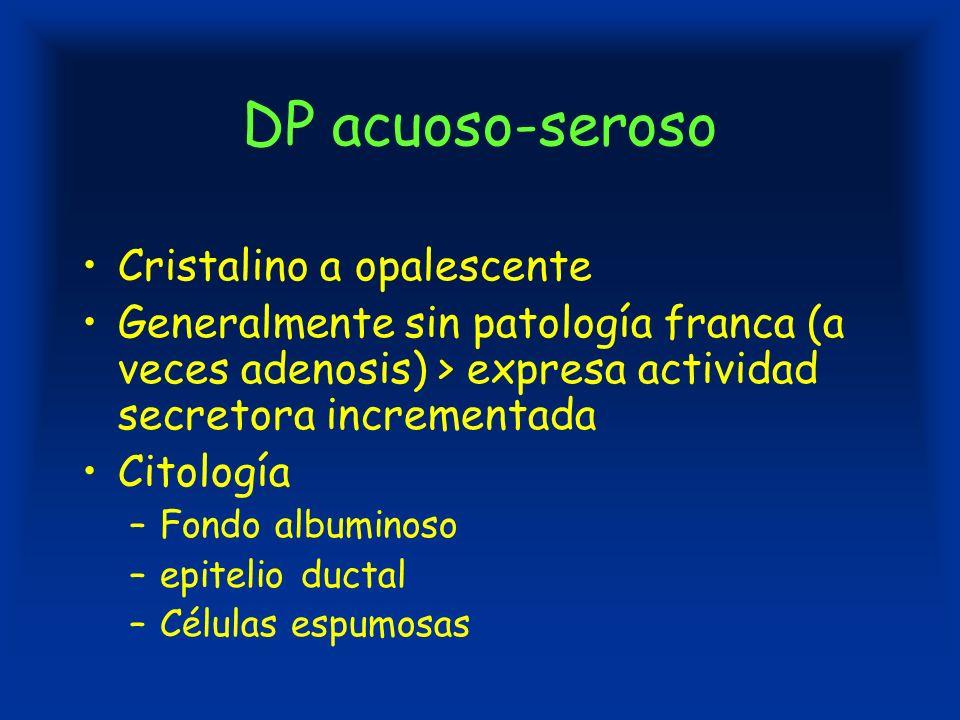 DP acuoso-seroso Cristalino a opalescente Generalmente sin patología franca (a veces adenosis) > expresa actividad secretora incrementada Citología –Fondo albuminoso –epitelio ductal –Células espumosas