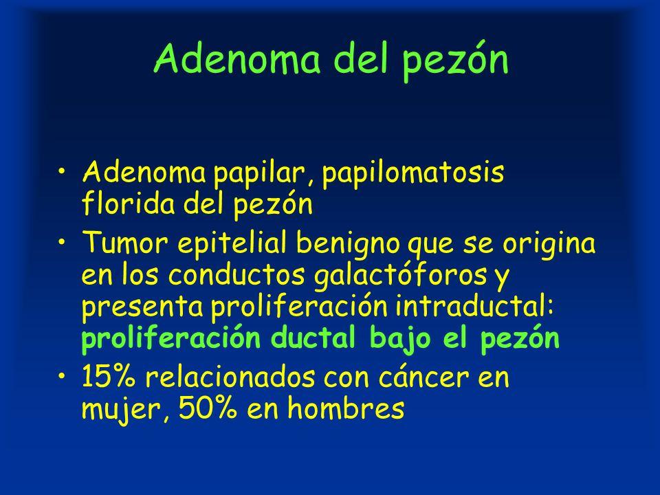 Adenoma del pezón Adenoma papilar, papilomatosis florida del pezón Tumor epitelial benigno que se origina en los conductos galactóforos y presenta proliferación intraductal: proliferación ductal bajo el pezón 15% relacionados con cáncer en mujer, 50% en hombres