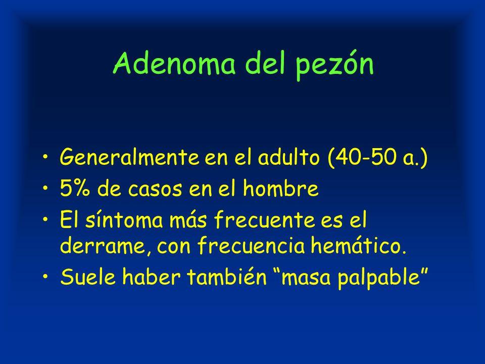 Adenoma del pezón Generalmente en el adulto (40-50 a.) 5% de casos en el hombre El síntoma más frecuente es el derrame, con frecuencia hemático.
