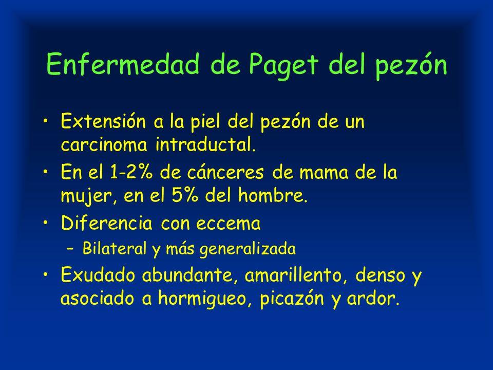 Enfermedad de Paget del pezón Extensión a la piel del pezón de un carcinoma intraductal.