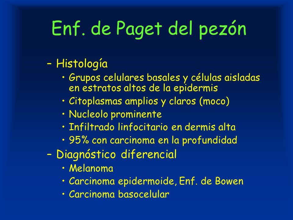 Enf. de Paget del pezón –Histología Grupos celulares basales y células aisladas en estratos altos de la epidermis Citoplasmas amplios y claros (moco)