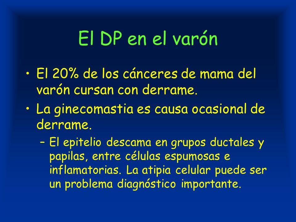El DP en el varón El 20% de los cánceres de mama del varón cursan con derrame.