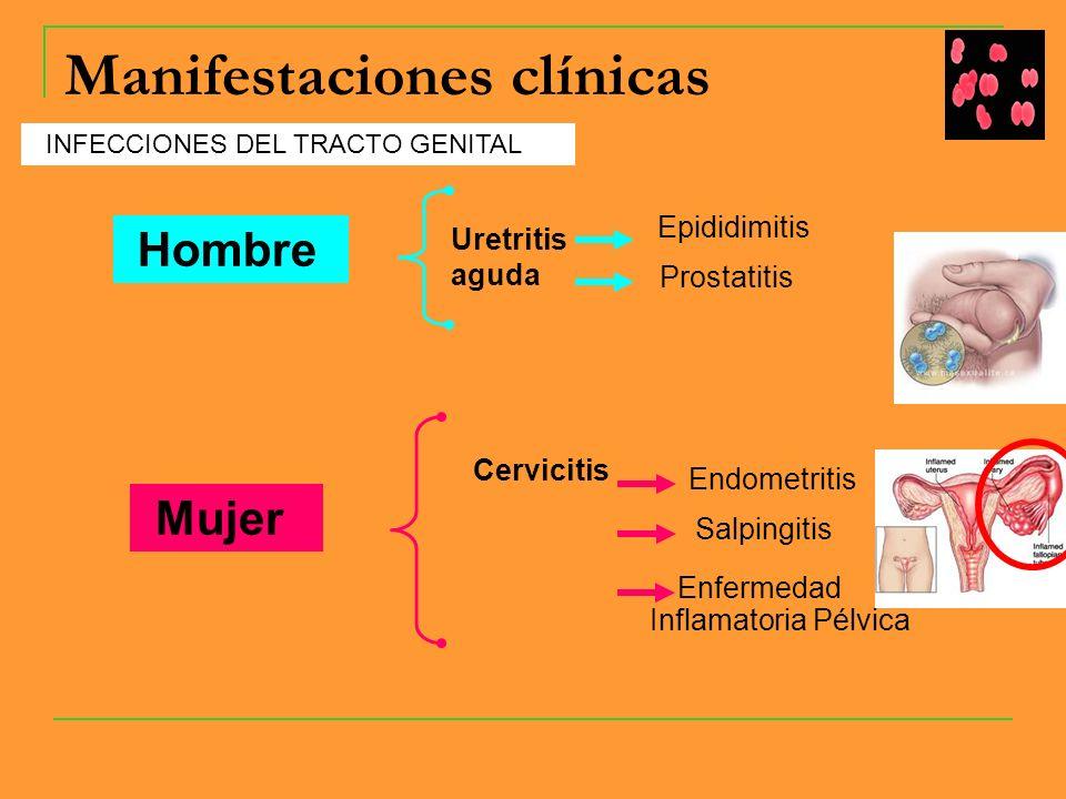 Manifestaciones clínicas INFECCIONES DEL TRACTO GENITAL Hombre Uretritis aguda Mujer Epididimitis Prostatitis Cervicitis Endometritis Salpingitis Enfermedad Inflamatoria Pélvica