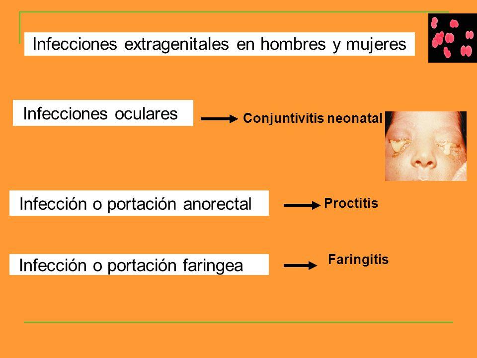 Infecciones oculares Conjuntivitis neonatal Infección o portación anorectal Infección o portación faringea Infecciones extragenitales en hombres y mujeres Proctitis Faringitis