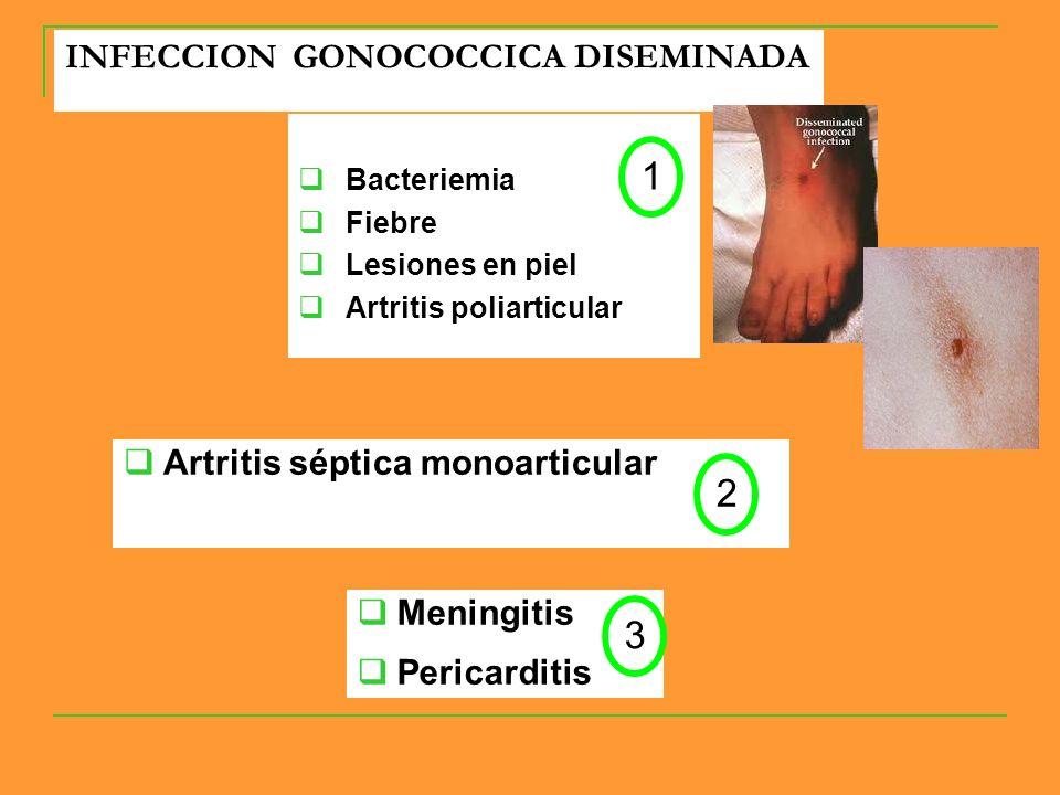 INFECCION GONOCOCCICA DISEMINADA Bacteriemia Fiebre Lesiones en piel Artritis poliarticular Artritis séptica monoarticular Meningitis Pericarditis 1 2 3