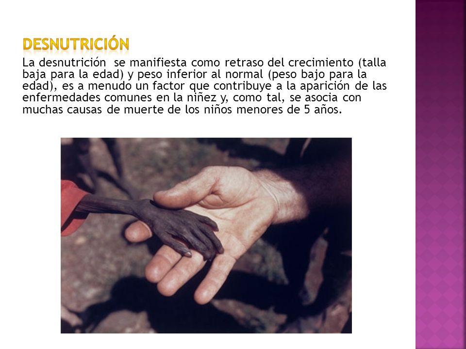 La desnutrición se manifiesta como retraso del crecimiento (talla baja para la edad) y peso inferior al normal (peso bajo para la edad), es a menudo u