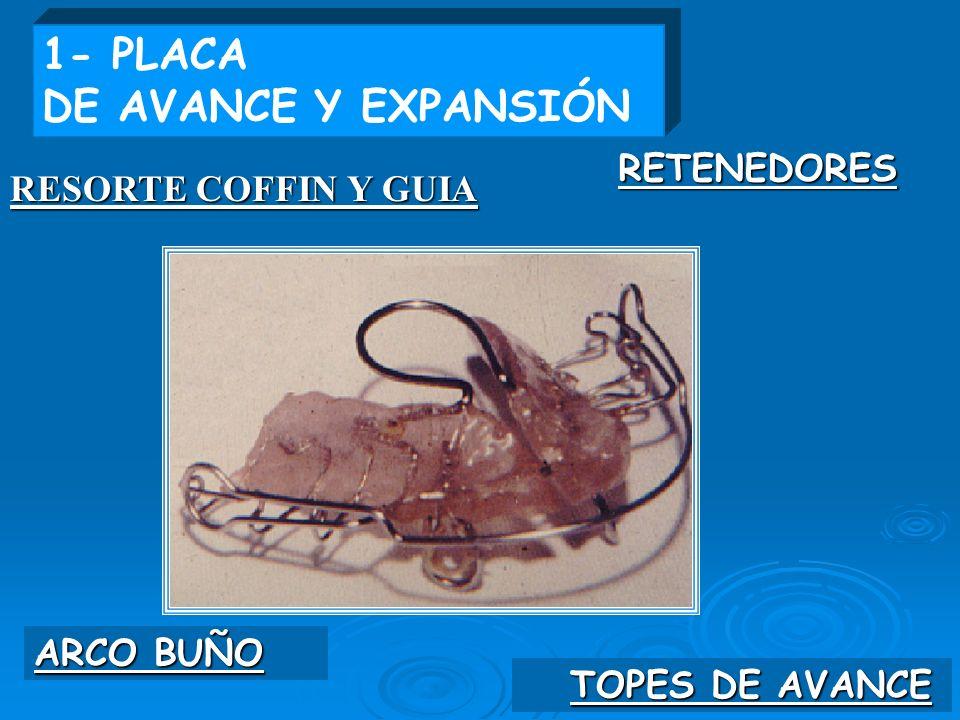 TOPES DE AVANCE ARCO BUÑO RESORTE COFFIN Y GUIA RETENEDORES 1- PLACA DE AVANCE Y EXPANSIÓN