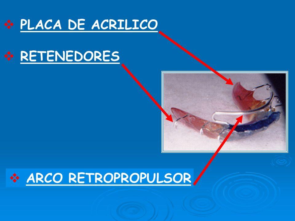 PLACA DE ACRILICO RETENEDORES ARCO RETROPROPULSOR