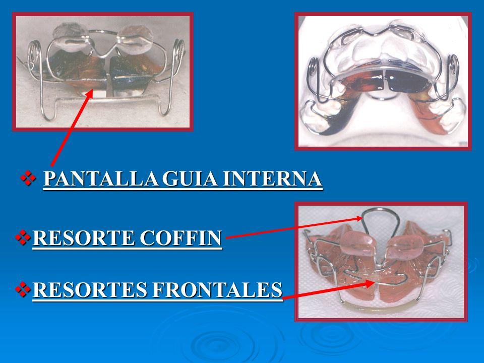 RESORTE COFFIN RESORTE COFFIN RESORTES FRONTALES RESORTES FRONTALES PANTALLA GUIA INTERNA PANTALLA GUIA INTERNA