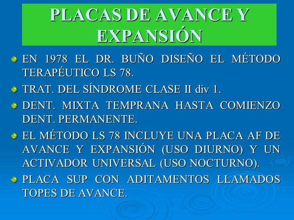 PLACAS DE AVANCE Y EXPANSIÓN EN 1978 EL DR. BUÑO DISEÑO EL MÉTODO TERAPÉUTICO LS 78. TRAT. DEL SÍNDROME CLASE II div 1. DENT. MIXTA TEMPRANA HASTA COM