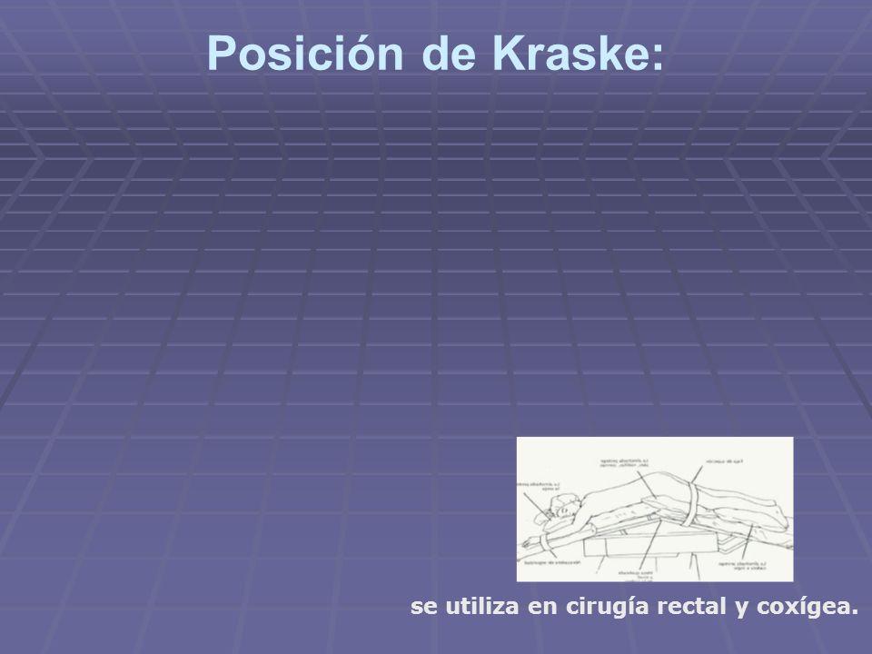 Posición de Kraske: se utiliza en cirugía rectal y coxígea.