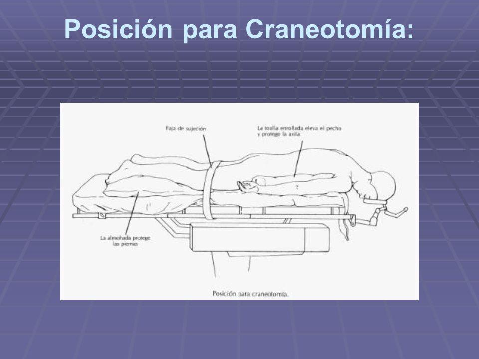 Posición para Craneotomía: