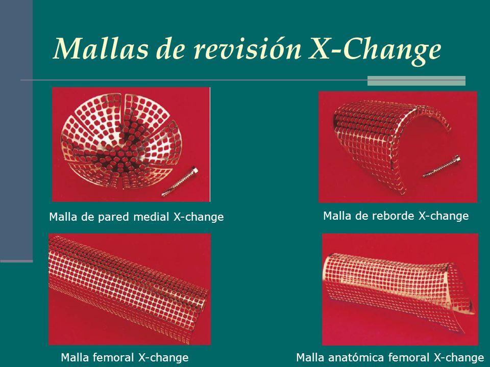 Tornillos sujeción mallas Tornillos de 3,5 mm autoterrajantes LEYENDA: La malla de revisión X-change® ofrece dos tamaños de Malla de pared medial, tres tamaños de Malla de reborde, una Malla femoral, una Malla anatómica femoral y una Malla plana.