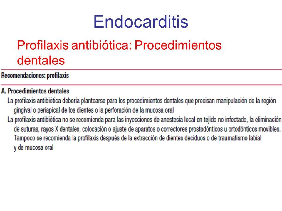 Profilaxis antibiótica: Procedimientos dentales Endocarditis