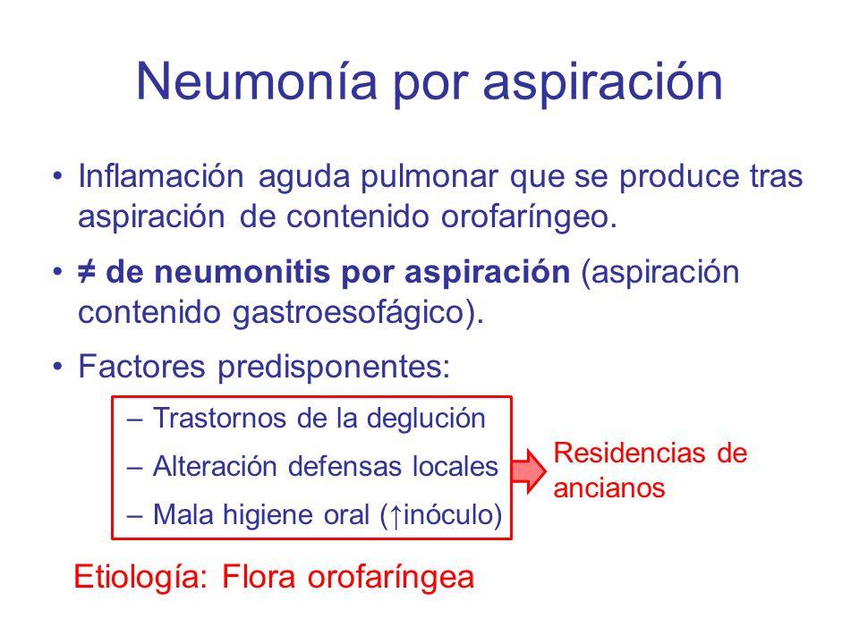 Neumonía por aspiración Inflamación aguda pulmonar que se produce tras aspiración de contenido orofaríngeo. de neumonitis por aspiración (aspiración c