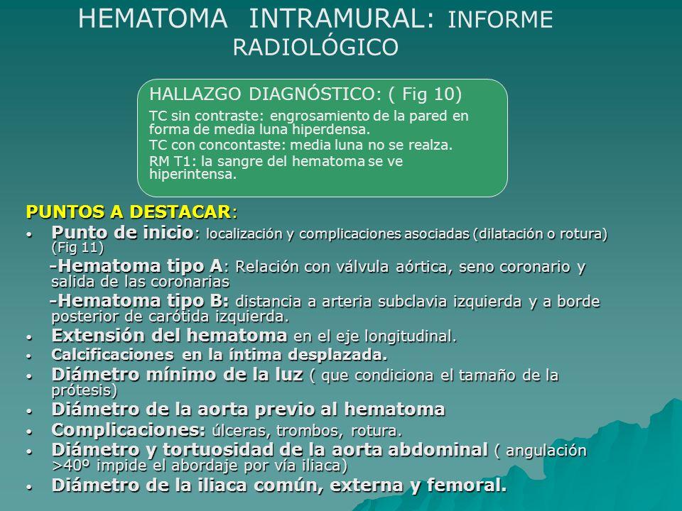 PUNTOS A DESTACAR: Punto de inicio : localización y complicaciones asociadas (dilatación o rotura) (Fig 11) Punto de inicio : localización y complicac