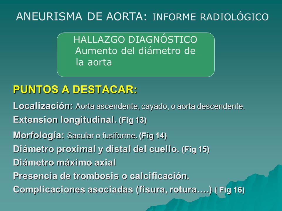 PUNTOS A DESTACAR: Localización: Aorta ascendente, cayado, o aorta descendente. Extension longitudinal. (Fig 13) Morfología: Sacular o fusiforme. (Fig