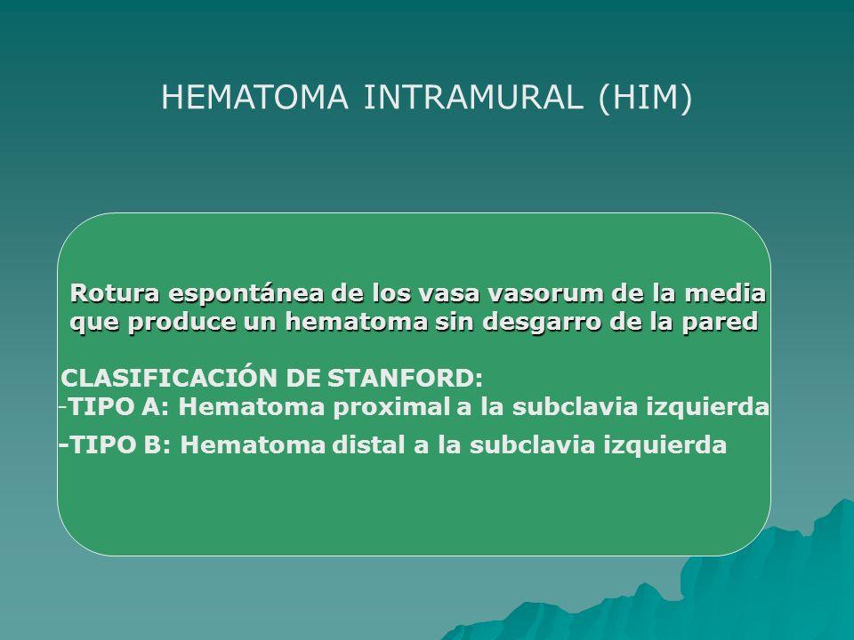 Rotura espontánea de los vasa vasorum de la media Rotura espontánea de los vasa vasorum de la media que produce un hematoma sin desgarro de la pared q