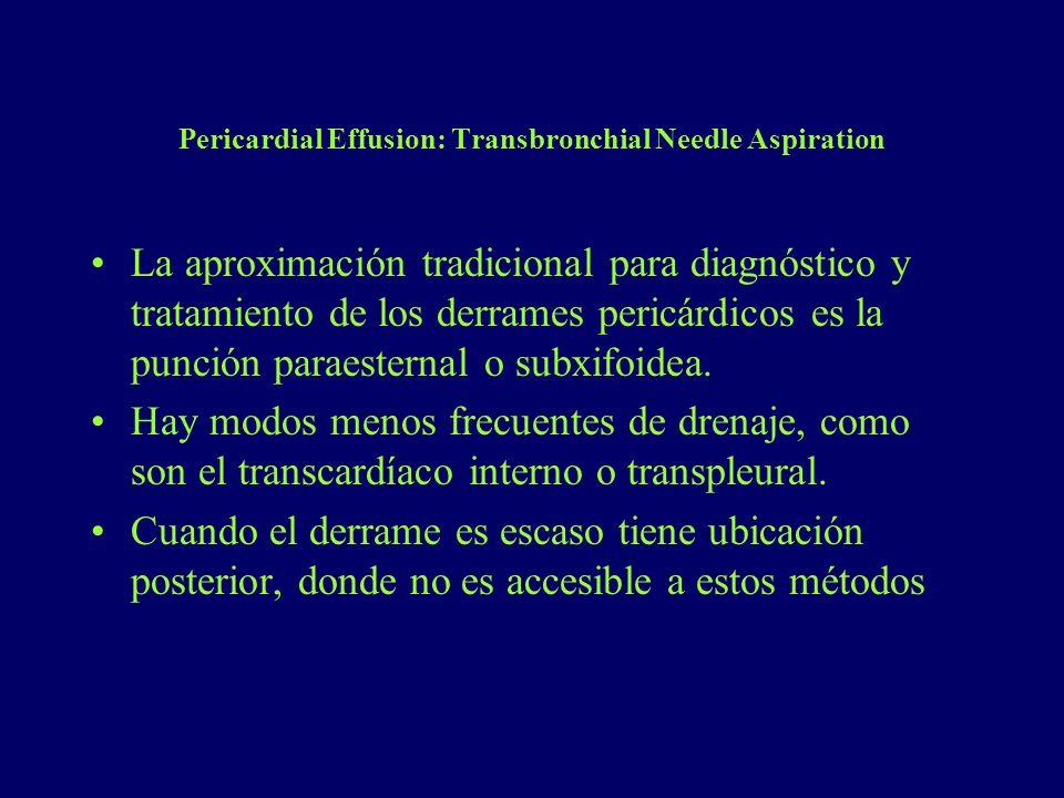 Pericardial Effusion: Transbronchial Needle Aspiration La aproximación tradicional para diagnóstico y tratamiento de los derrames pericárdicos es la p