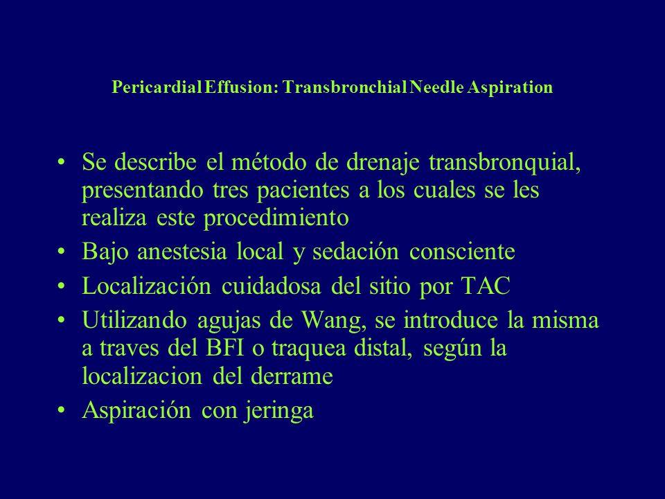 Pericardial Effusion: Transbronchial Needle Aspiration Se describe el método de drenaje transbronquial, presentando tres pacientes a los cuales se les