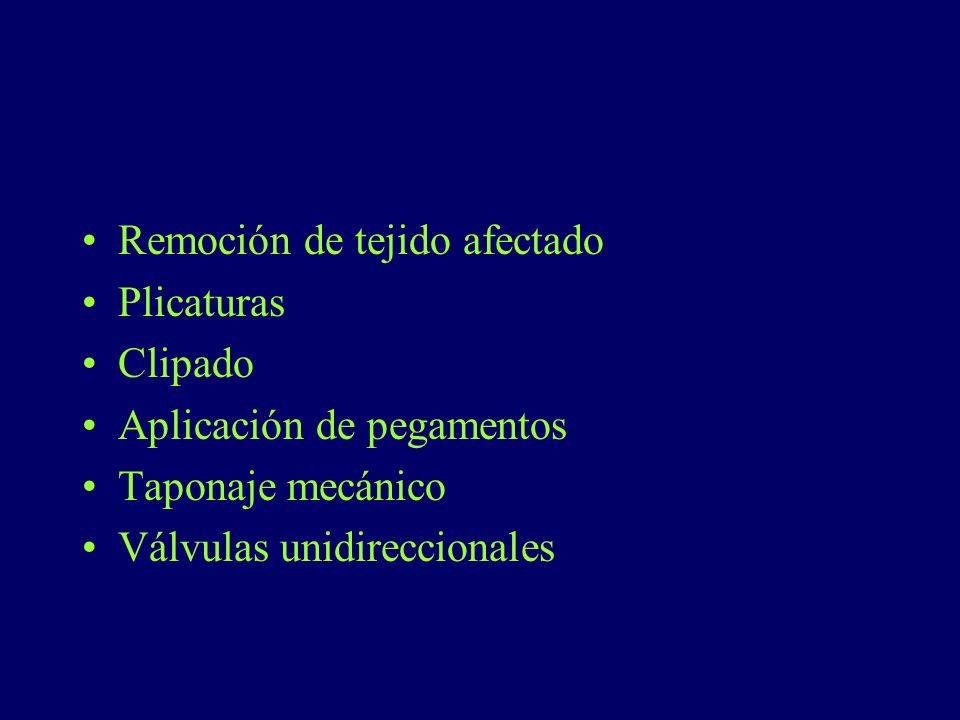 Remoción de tejido afectado Plicaturas Clipado Aplicación de pegamentos Taponaje mecánico Válvulas unidireccionales