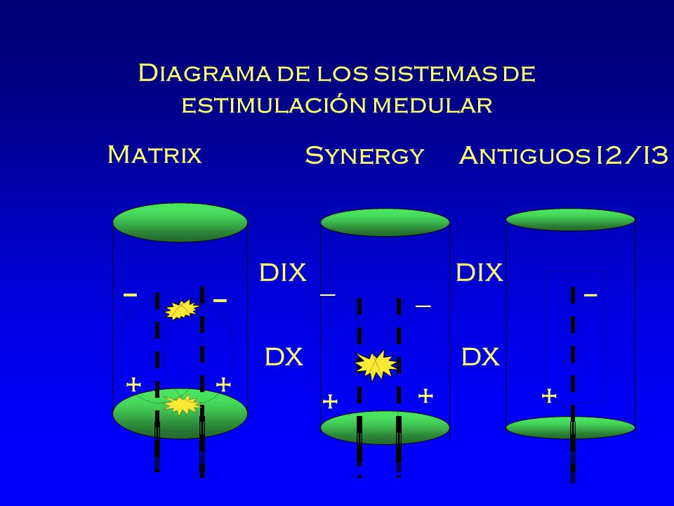 Diagrama de los sistemas de estimulación medular Matrix Synergy DIX DX _ + _ + _ + _ _ ++ Antiguos I2/I3 DIX DX