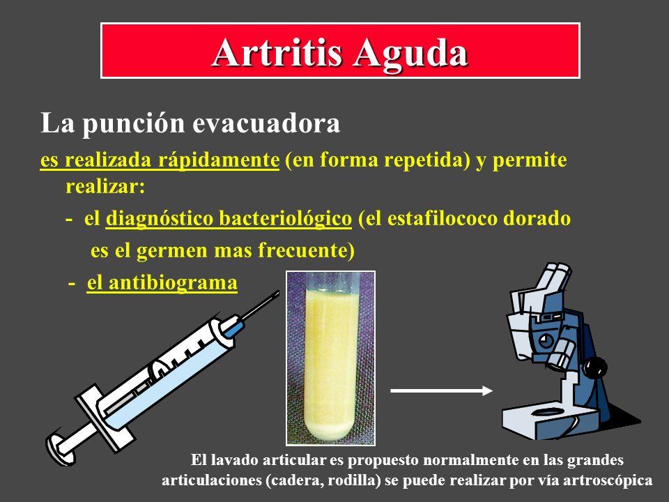 La punción evacuadora es realizada rápidamente (en forma repetida) y permite realizar: - el diagnóstico bacteriológico (el estafilococo dorado es el g