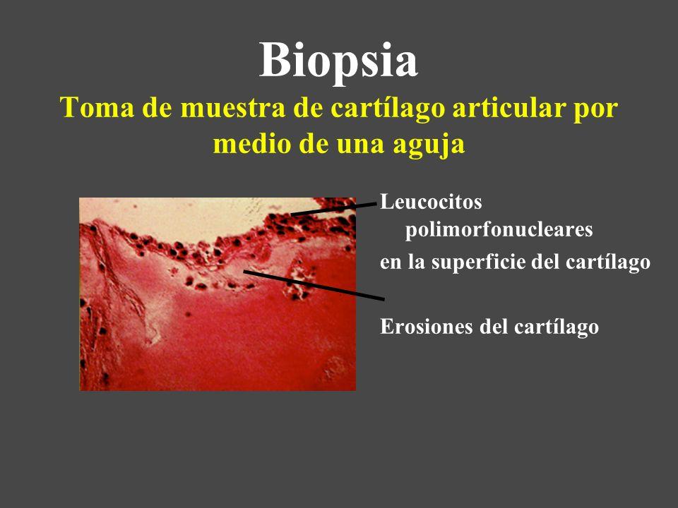 Biopsia Toma de muestra de cartílago articular por medio de una aguja Leucocitos polimorfonucleares en la superficie del cartílago Erosiones del cartí