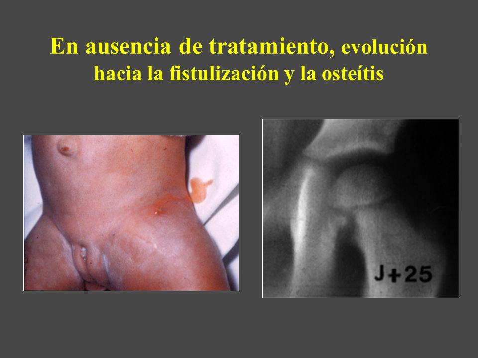 En ausencia de tratamiento, evolución hacia la fistulización y la osteítis