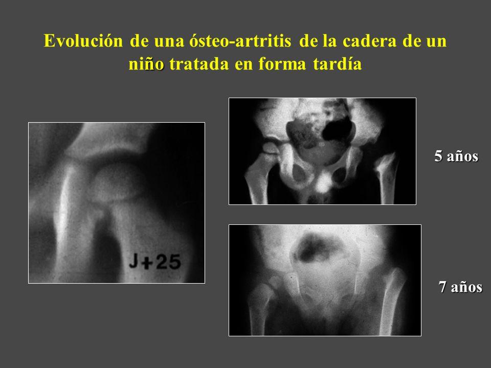 ño Evolución de una ósteo-artritis de la cadera de un niño tratada en forma tardía 5 años 7 años
