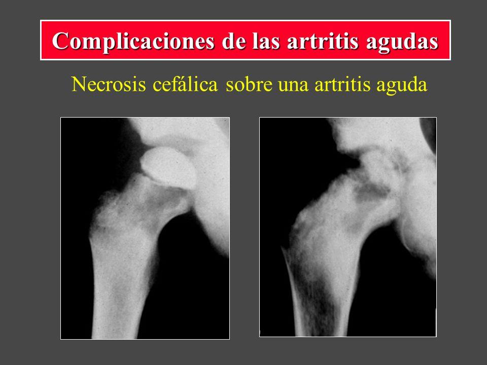 Necrosis cefálica sobre una artritis aguda Complicaciones de las artritis agudas