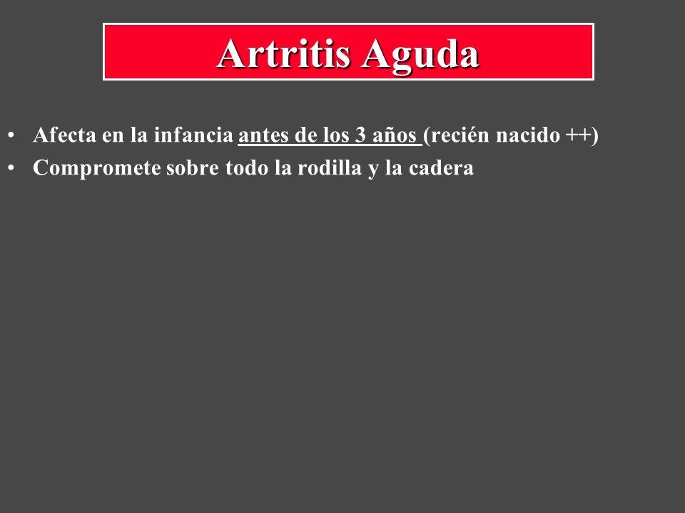 Artritis Aguda Afecta en la infancia antes de los 3 años (recién nacido ++) Compromete sobre todo la rodilla y la cadera