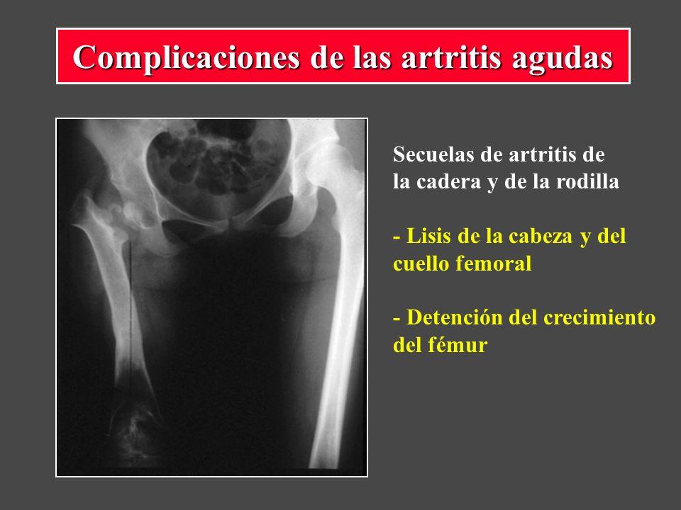 Complicaciones de las artritis agudas Secuelas de artritis de la cadera y de la rodilla - Lisis de la cabeza y del cuello femoral - Detención del crecimiento del fémur