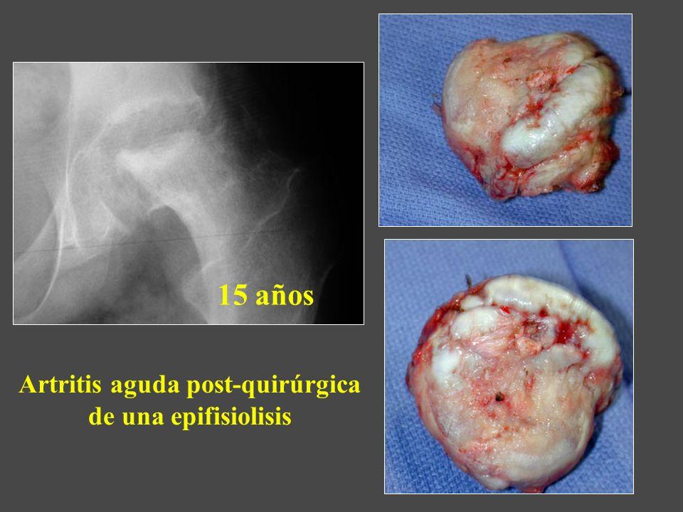 Artritis aguda post-quirúrgica de una epifisiolisis 15 años