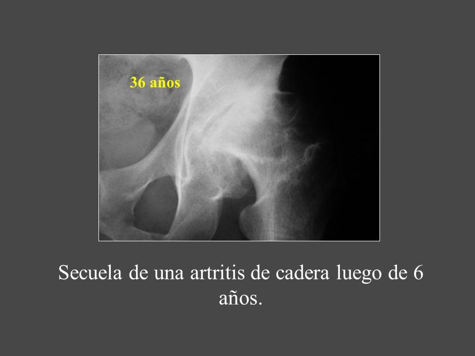 Secuela de una artritis de cadera luego de 6 años. 36 años