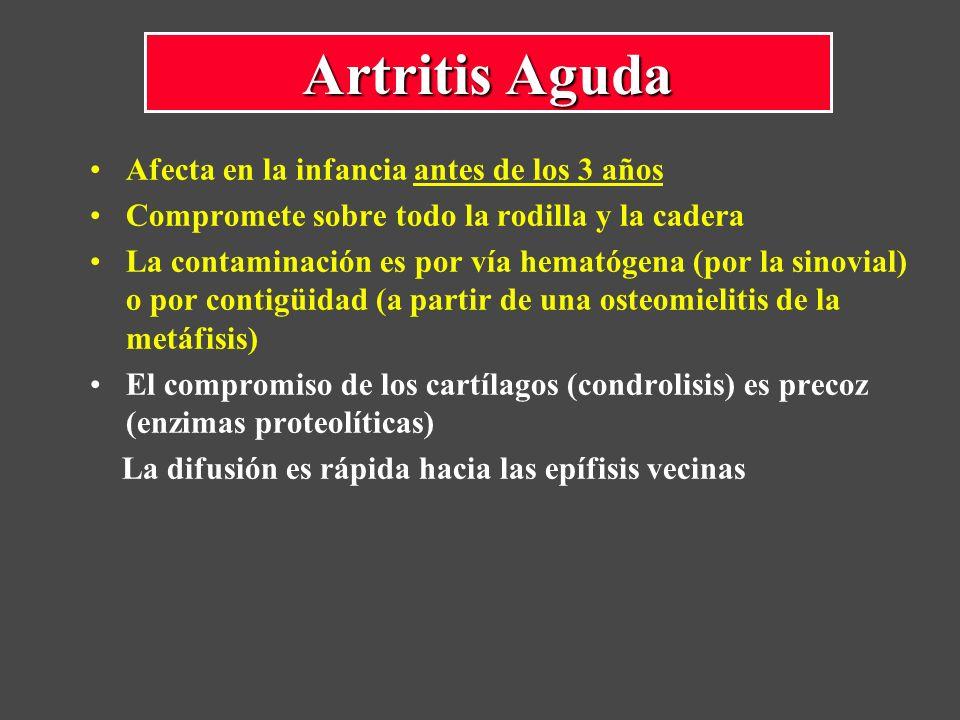 Afecta en la infancia antes de los 3 años Compromete sobre todo la rodilla y la cadera La contaminación es por vía hematógena (por la sinovial) o por contigüidad (a partir de una osteomielitis de la metáfisis) El compromiso de los cartílagos (condrolisis) es precoz (enzimas proteolíticas) La difusión es rápida hacia las epífisis vecinas Artritis Aguda