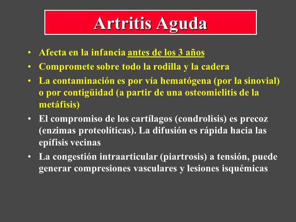 Afecta en la infancia antes de los 3 años Compromete sobre todo la rodilla y la cadera La contaminación es por vía hematógena (por la sinovial) o por contigüidad (a partir de una osteomielitis de la metáfisis) El compromiso de los cartílagos (condrolisis) es precoz (enzimas proteolíticas).