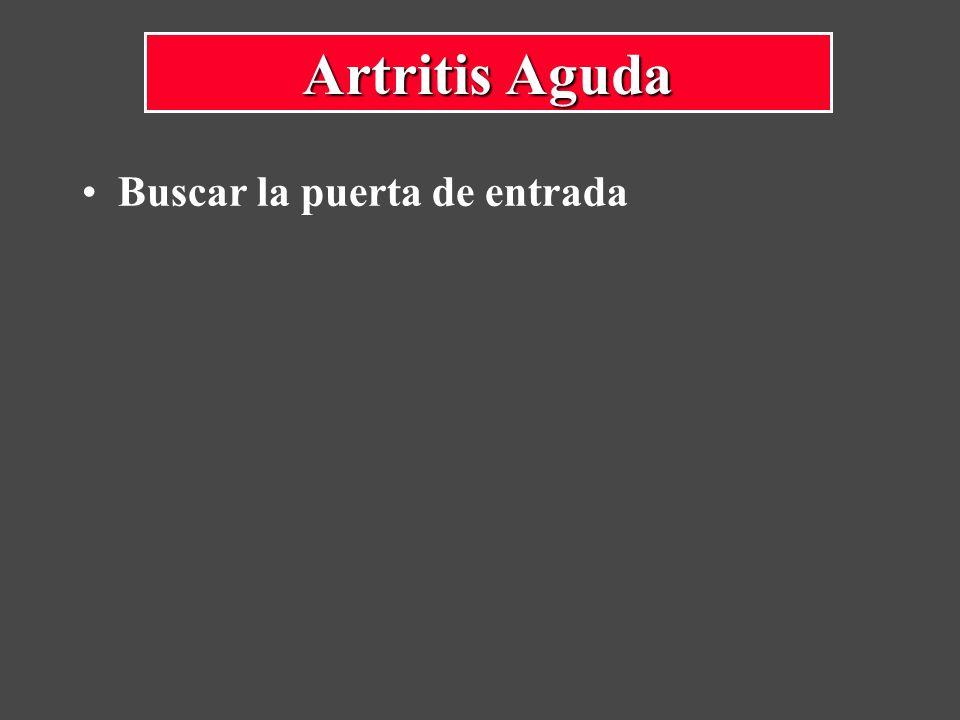 Buscar la puerta de entrada Artritis Aguda