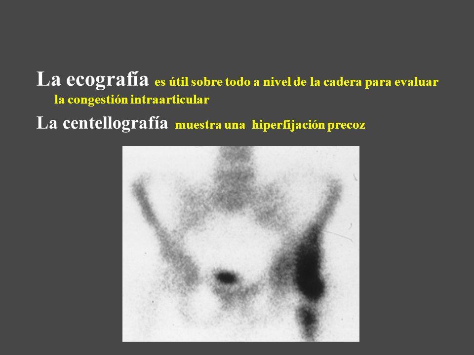 La ecografía es útil sobre todo a nivel de la cadera para evaluar la congestión intraarticular La centellografía muestra una hiperfijación precoz