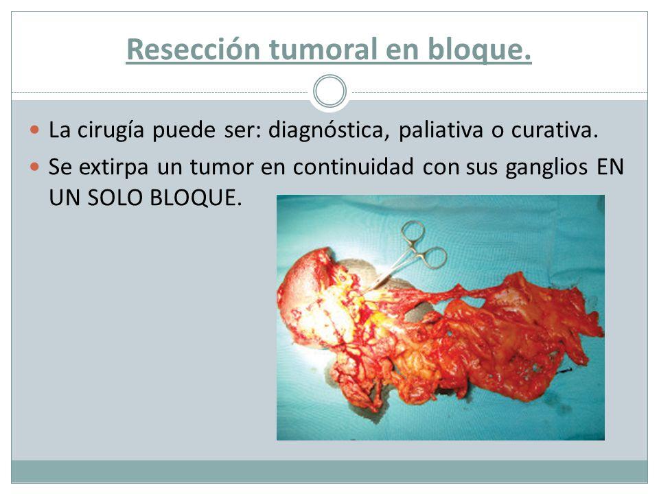 Resección tumoral en bloque.La cirugía puede ser: diagnóstica, paliativa o curativa.