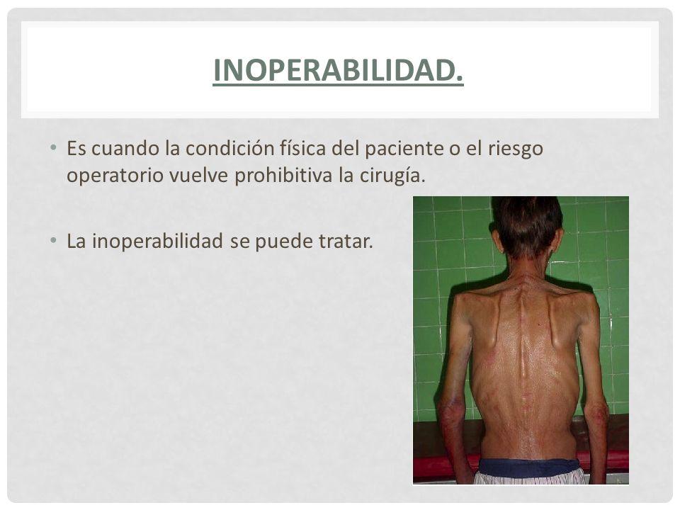 INOPERABILIDAD.